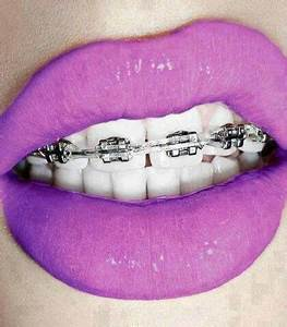 braces and purple lips Curated by Dr Stephen T E