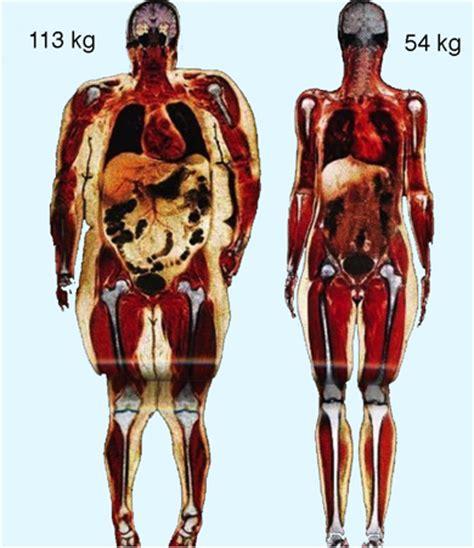Fett muskel anteil