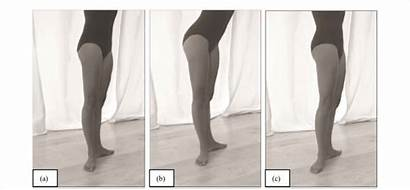 Alignment Pelvic Neutral Position Anterior Normal Tilt