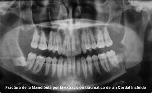 Broken Jaw Related Keywords & Suggestions - Broken Jaw ...