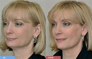 Контрактубекс от морщин отзывы фото до и после