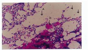 Gram Stain Of Fresh Stool Specimens  Arrow A Showing