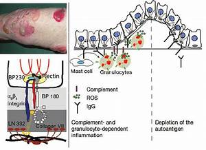 Mechanisms Of Blister Formation In Bullous Pemphigoid  Bp