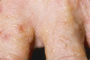 Dyshidrotic eczema as related to Blister - Pictures