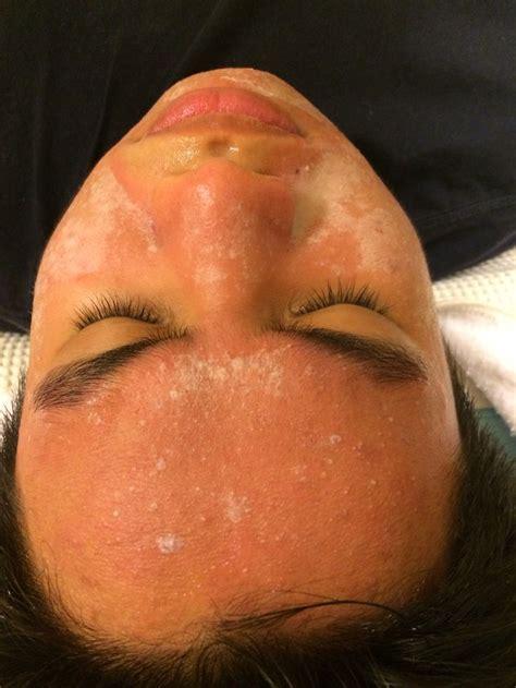 frosting chemical peel  images peeling skin