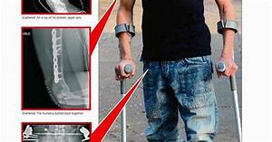 Ward End Dad Who Fell 100ft Breaks Almost Every Bone In