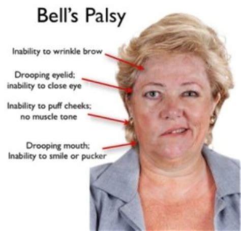 facial paralysis pregnancy