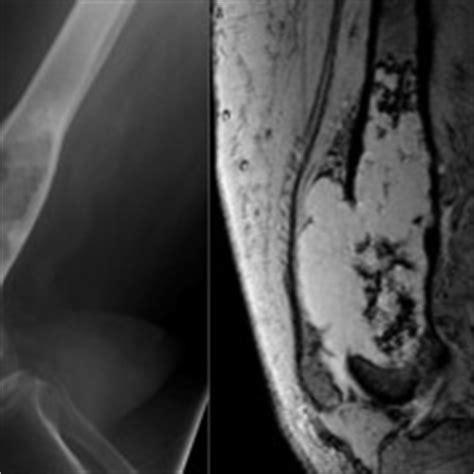 lung metastases  radiology  st vincents
