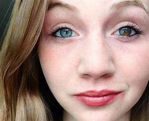 1. Some people are born with two different eye colors, the ...