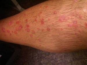 Psoriasis or Eczema from the pictures? - Inspire