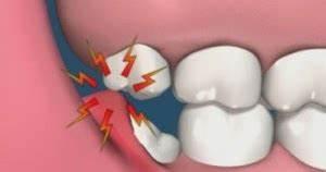 Symptome Dent De Sagesse : dents de sagesse qui tire soins dentaires ~ Maxctalentgroup.com Avis de Voitures