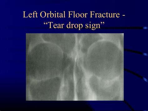 Orbital Floor Fracture Symptoms by Ocular Emergencies