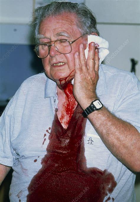 bleeding due  warfarin stock image  science