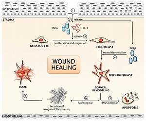 Schematic Representation Of The Corneal Wound Healing