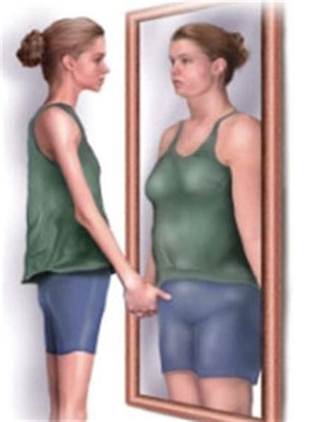 anorexia nervosa treatment  anorexia nervosa types