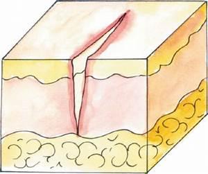 При псориазе трещины на коже рук