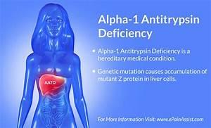 Alpha-1 Antitrypsin Deficiency: Causes, Symptoms, Treatment