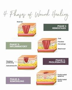 4 Stages Of Wound Healing