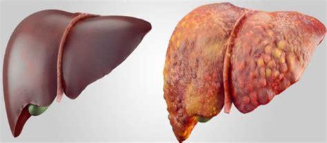 foods     regenerate  liver women
