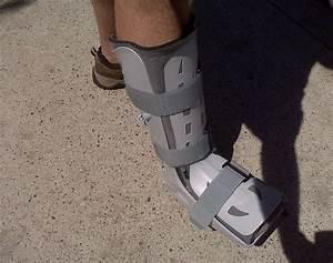 Боли в суставе при реабилитации после перелома