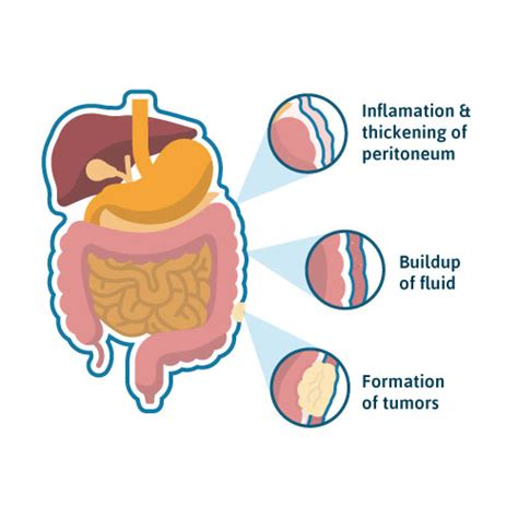 peritoneal mesothelioma  treatment survival rates