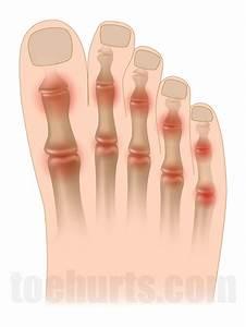 Psoriasis, vulgaris Soles Picture Image