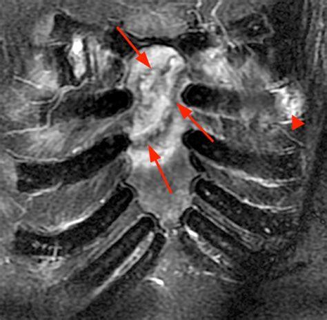 costal cartilage injuries radsource