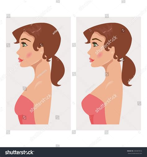 Illustration Woman Breast Before After Mammoplasty Stock