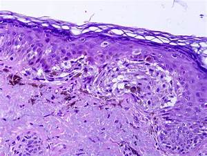 Pathology Outlines - Lentigo maligna melanoma