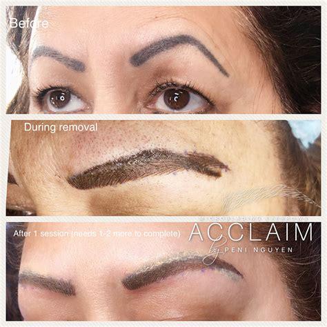 eyebrow tattoo removal arlington microblading removal tx