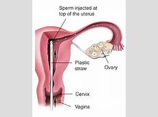 Pin by GiftIVF Center on Infertility Iui treatment, Ivf