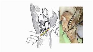 Medial Patellar Desmotomy  Laboratory Practice