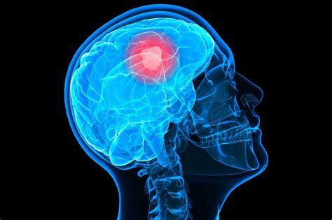tumore al cervello e alimentazione tumore al cervello scienze notizie