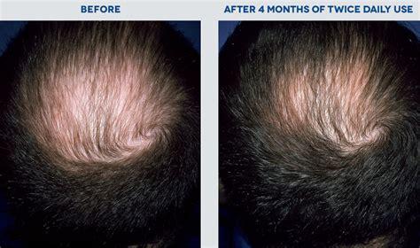 Rogaine Malaysia | Hair Loss & Hair Regrowth Treatment
