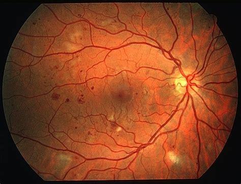 diabetic retinopathy idaho falls diabetic eye disease
