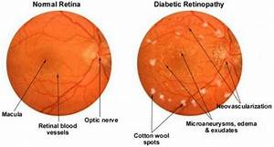 Difference Between Normal Retina And Diabetic Retinopathy