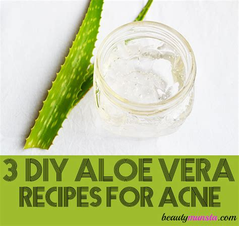 diy aloe vera recipes  acne prone skin beautymunsta