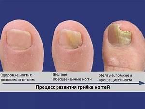 Уксус яйцо сливочное масло мазь для лечения грибка ногтей