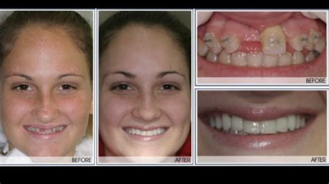 Dental Implants  Exton, Pa West Chester, The Main Line