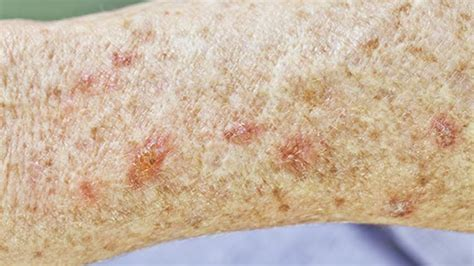 actinic keratosis lesions treatment options healthcentral