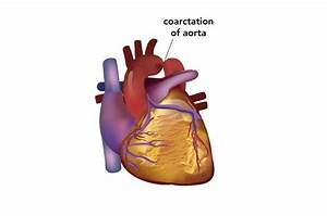 14 Best Overriding Aorta Images On Pinterest