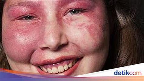ungkap arti cantik sejati  wanita albino penderita