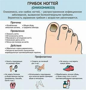 Лечение ногтей от грибка на руках