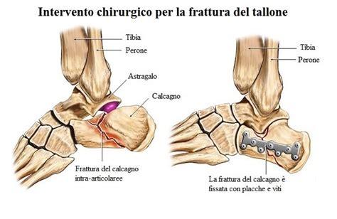 dolore al tallone laterale interno amazing dolore piede esterno dz17 pineglen