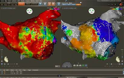 Mapping Ep Density Lab Ultra Carto System