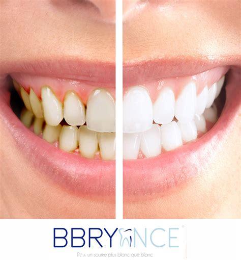 kit blanchiment des dents pro bbryance