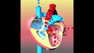 Congenital Heart Defects I  Asd  Vsd  As  Ps  Pda And Pfo
