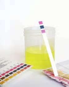 Urinalysis testing Blackburn, Melbourne Urinalysis