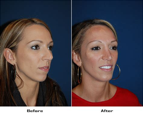 Facial Plastic Surgeons In Charlotte, North Carolina Rhinoplasty Can Be A Blessing, Medically File Plastic Storage Box Yellow Chain Sage Robbins Surgery Containers Organizers Valance Clips For Vertical Blinds Best Surgeon In Newport Beach Clear Sofa Covers Pizza Table