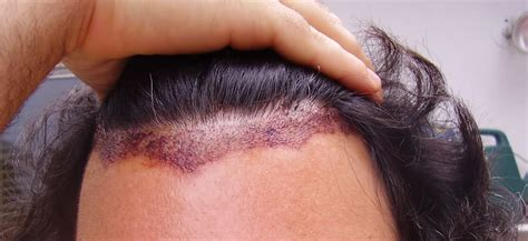 Hair Transplant's Impacts Your Doctors Wont Tell You